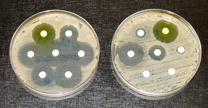Antibiotic Resistance, Photo: Wikimedia Commons